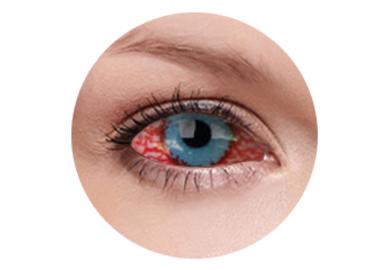 ColourVue Crazy šošovky Sklerálne - Mesmero (2 ks polročné) - nedioptrické